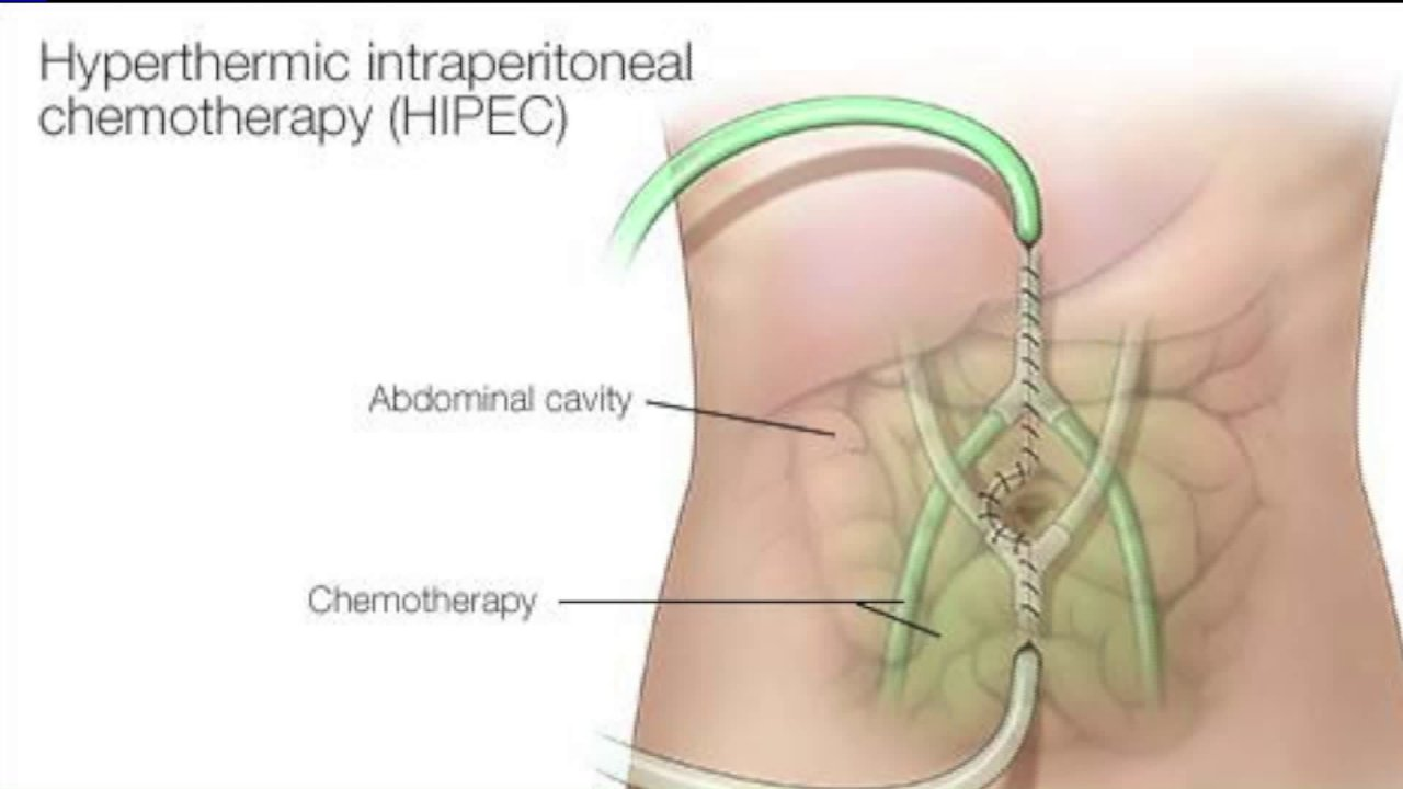 Health Watch Hipec May Prolong Survival Of Abdominal Cancers Fox 2