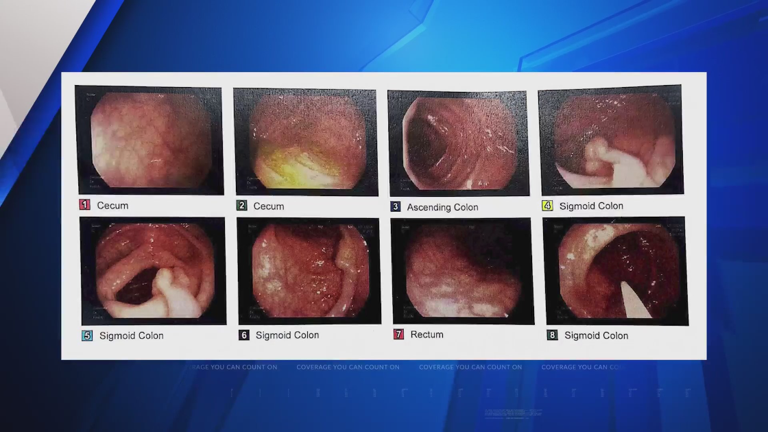 SSM Health Medical Minute – 'Almost all deaths from colon cancer can be prevented'